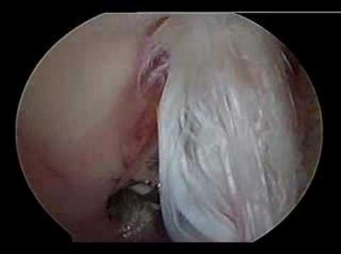 Bicep tendon repair