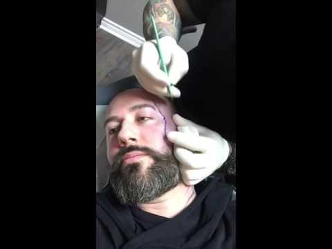 Facial Scarification Part 1