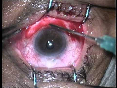 conjunctivochalasis surgery with narration Dec 2013