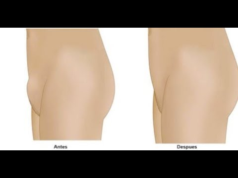 ¿Me puedo hacer una liposucción del pubis sólo por estética?