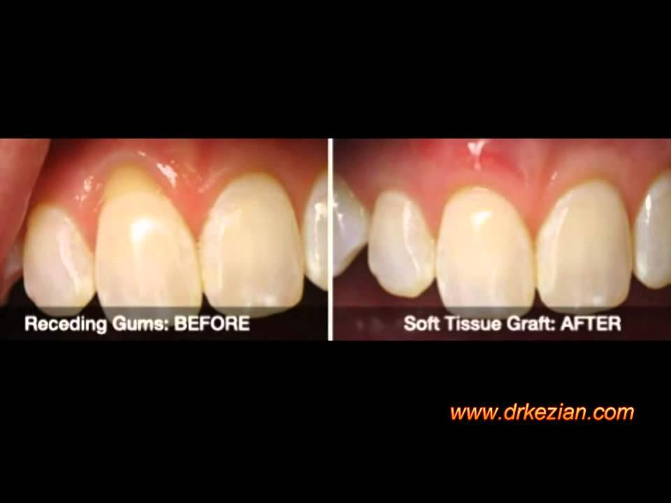 receding gum line
