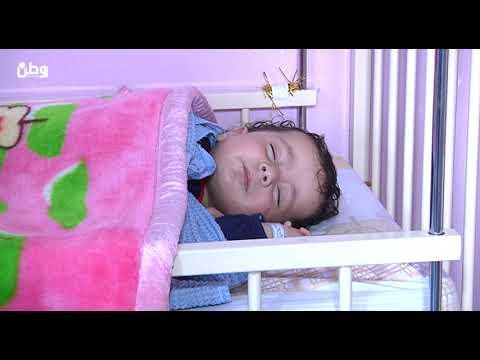لأول مرة.. وفد طبي هندي يجري عمليات قلب مفتوح لاطفال فلسطينيين