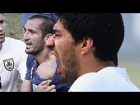 Luis Suarez nach Biss: