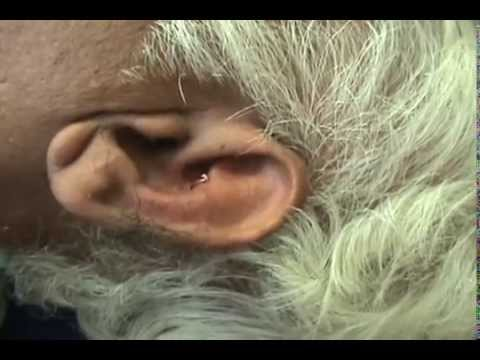 DIABETES TREATMENT WITH EAR ACUPUNCTURE AURICULOTHERAPY IN INDIA