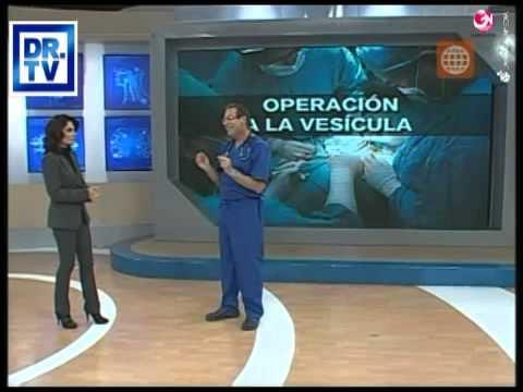 DR TV PERU 21-09-2012 - 3 El Tema del Día -- Operación a la Vesícula