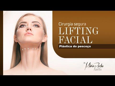 Cirurgia Plástica do Pescoço com Dr. Mário Rocha