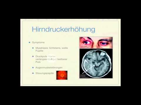 Basiskurs Neurologie: Hirndruck Teil 3/14