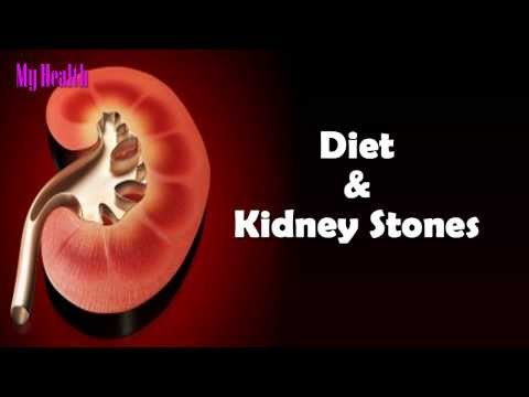 kidney diet  - avoid foods - Health - Yoga - Fitness - My Health