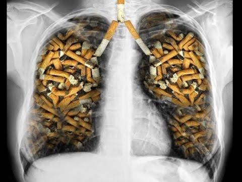 Đừng để thuốc lá làm hỏng lá phổi của bạn