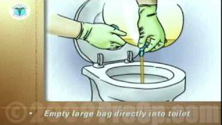 PostCare™ Patient Education Emptying A Urinary Drainage