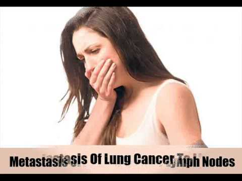 6 Signs And Treatments Of Metastasis Of Lung Cancer