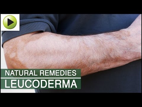 Leucoderma - Natural Ayurvedic Home Remedies
