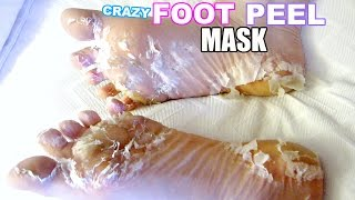 I TESTED A CRAZY FOOT PEEL MASK!