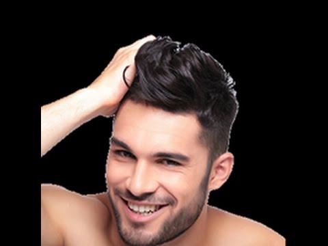 Saç əkimi ( F.U.E. ) necə edilər? Xətai klinikası Sac ekimi