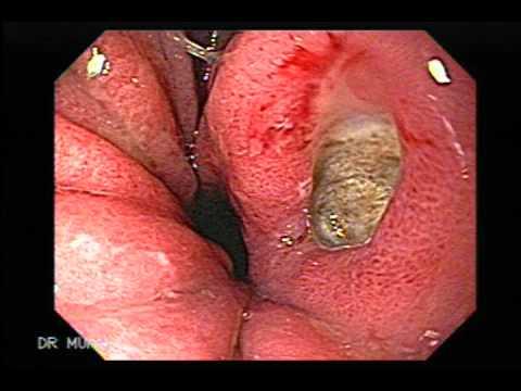 human esophagus diagram