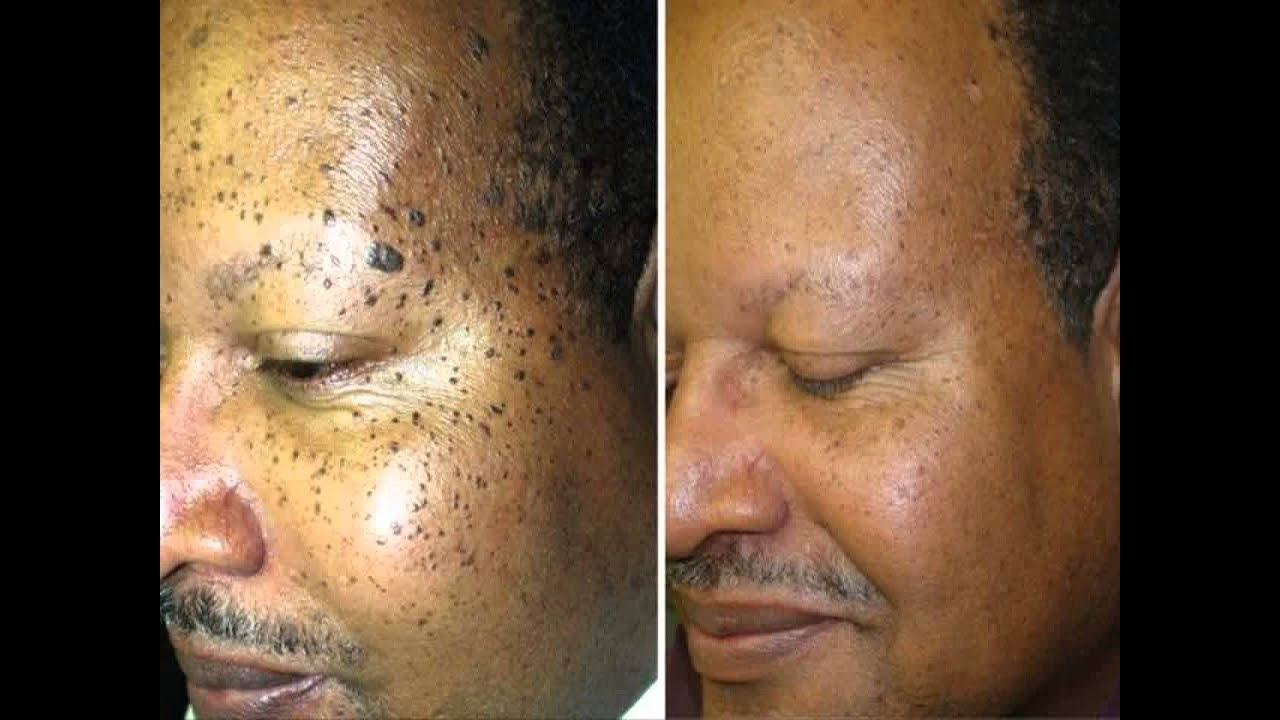 How to get rid of moles in your face naturally permanently