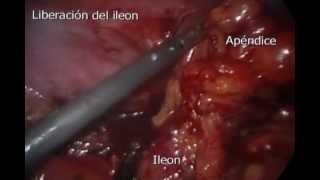 APENDICECTOMIA POR LAPAROSCOPIA. Www.doctorjesusreyes.com
