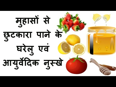 Pimples on face removal tips in hindi pimple marks treatment for oily skin beauty tips for face