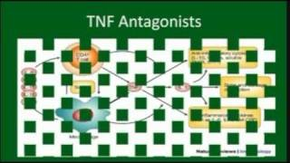 YouTube Video: Biologics: TNF Antagonists for Rheumatoid Arthritis