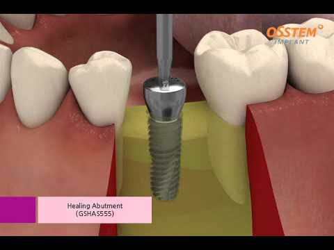 Dental implant procedure (Osstem implant TS III)