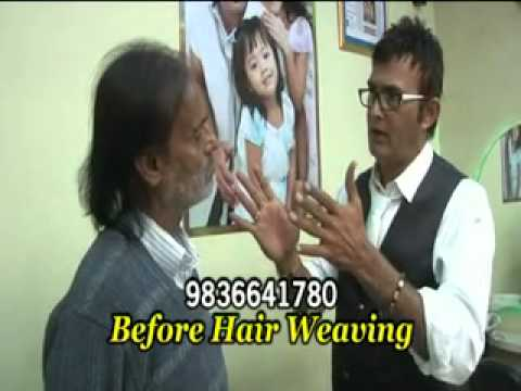 hair weaving + wrinkle + anti-aging treatment by khan