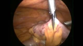 Colostomia Por Vídeo Laparoscopia Laparoscópica