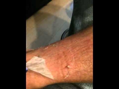 how to help with peeling sun burn
