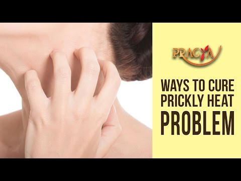 Ways To Cure Prickly Heat Problem | Dr. Shehla Aggarwal (Dermatologist)