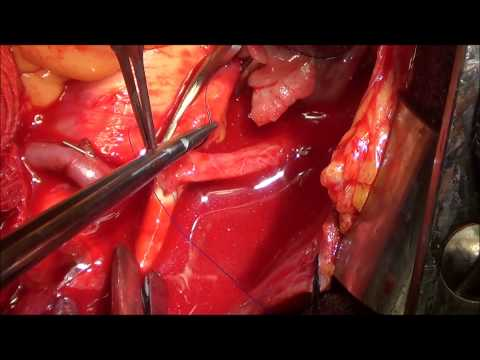 Coronary Artery Bypass Graft with Dr Roger Irvine and Dr Moses Degraft Johnson