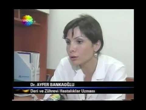 Show TV Ana Haber - Kınaya Avrupa Birliği Engeli