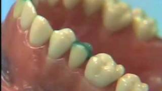 Dental Anatomy: Waxing a Maxillary Second Bicuspid