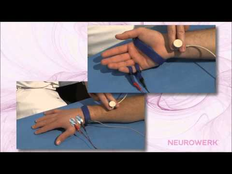 Sensory Neurography - Median Nerve