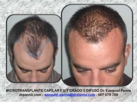 Dr. Ezequiel Panno Implante Capilar Casos FUT FUE Revision Cicatriz Mesoterapia Capilar