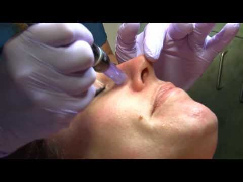 Dermapen Microneedling at W Cosmetic Surgery