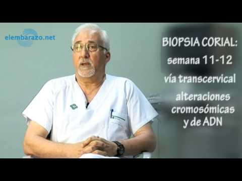 Biopsia Corial
