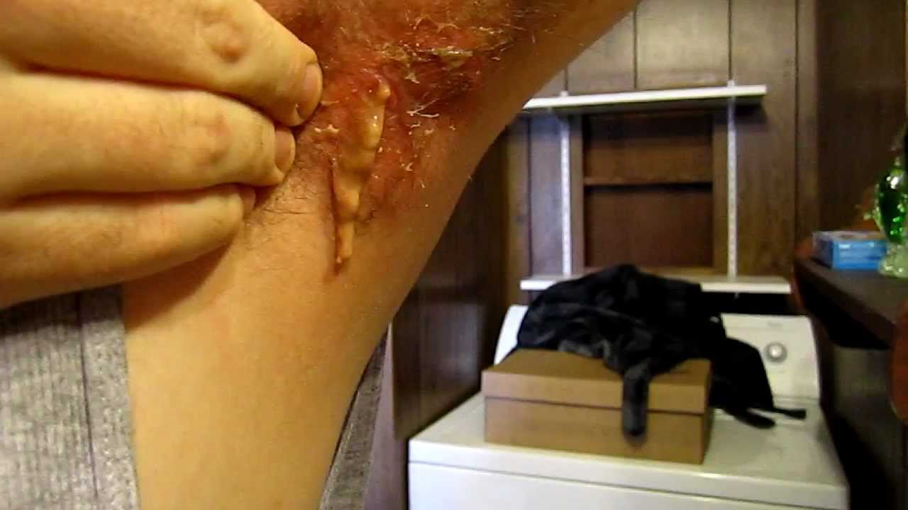 Draining a HUGE Underarm Cyst Abcess Infection Pimple Boil Puss Ick