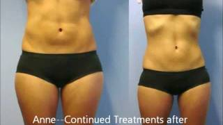 Zerona Fat Burning Laser Treatment--My Zerona Review