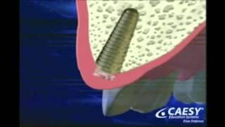 نظرة على زراعة الأسنان مع شرح مراحل التركيب