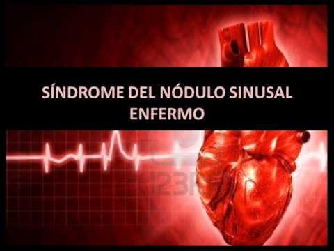 Arritmias cardíacas - Síndrome del nódulo sinusal enfermo