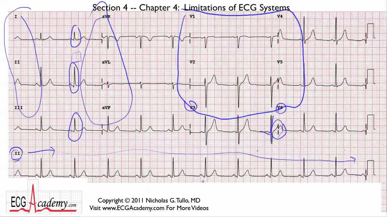 Telemetry Lead Diagram on 12 lead ecg block diagram