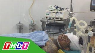 Hai nhóm giang hồ chém nhau, 3 người bị thương | THDT