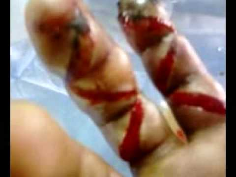 King Cobra bite!!! - YouTube