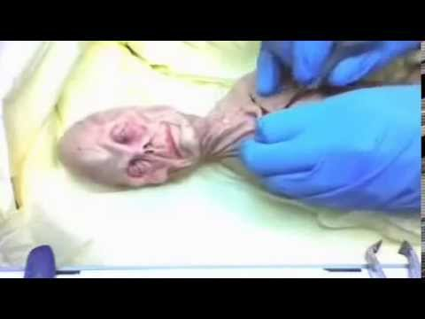 Race of tiny aliens real autopsy! Accident in Russia 1969.