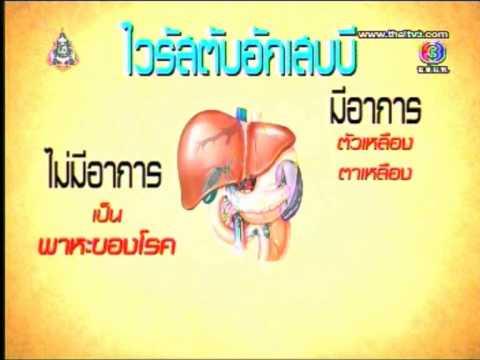 โรคไวรัสตับอักเสบบี