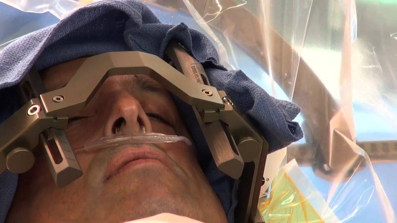 deep brain stimulation surgery to treat parkinson u0026 39 s