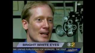 #1 Secret For White Eyes How To Make Your Eyes Whiter