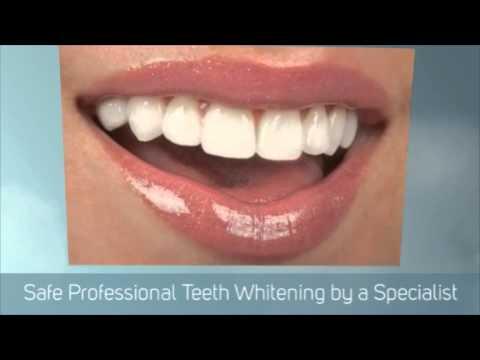 Teeth Whitening Special Offer at Bridge Dental Marlow Bucks UK