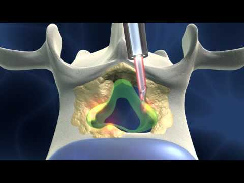 Full-endoscopic spinal surgery for spinal stenosis; dorsal approach
