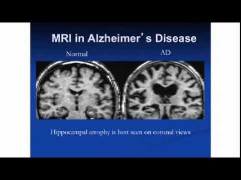 Recent Advances in Clinical Trials Research For Alzheimer's