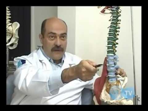 Bico de papagaio ou Osteofitose